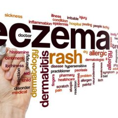 What Are the Best Essential Oils for Eczema and How to Use Them