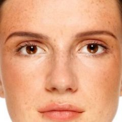 Look – 6 Effective Remedies For Pigmentation